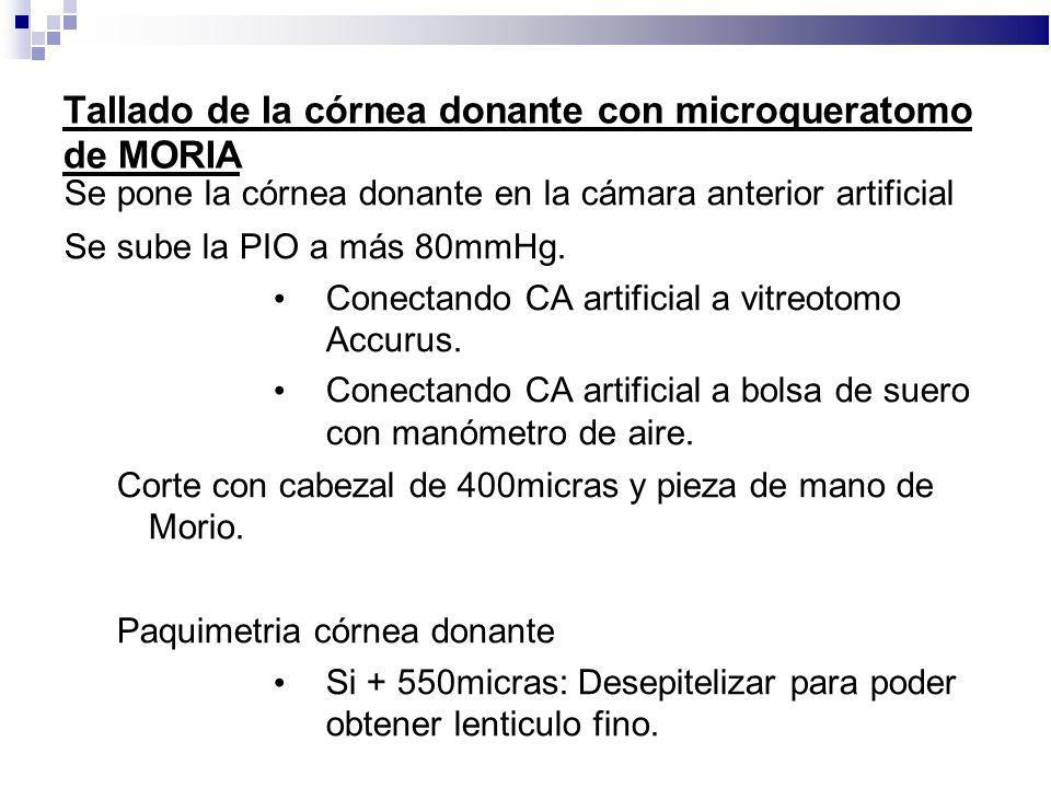 Tallado de la córnea donante con microqueratomo de MORIA Se pone la córnea donante en la cámara anterior artificial Se sube la PIO a más 80mmHg. Conec