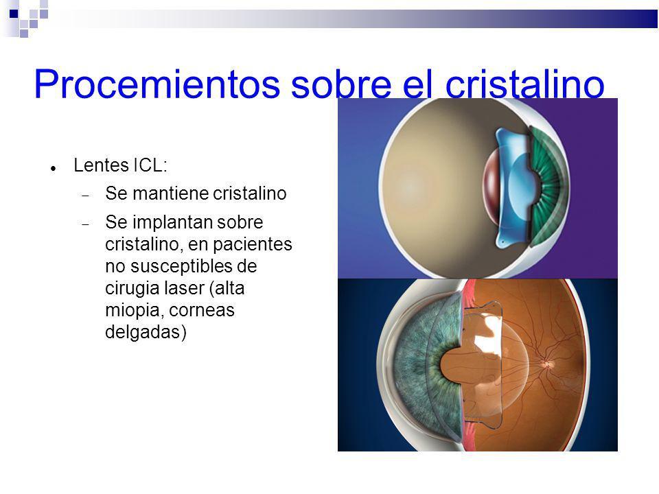 Procemientos sobre el cristalino Lentes ICL: Se mantiene cristalino Se implantan sobre cristalino, en pacientes no susceptibles de cirugia laser (alta