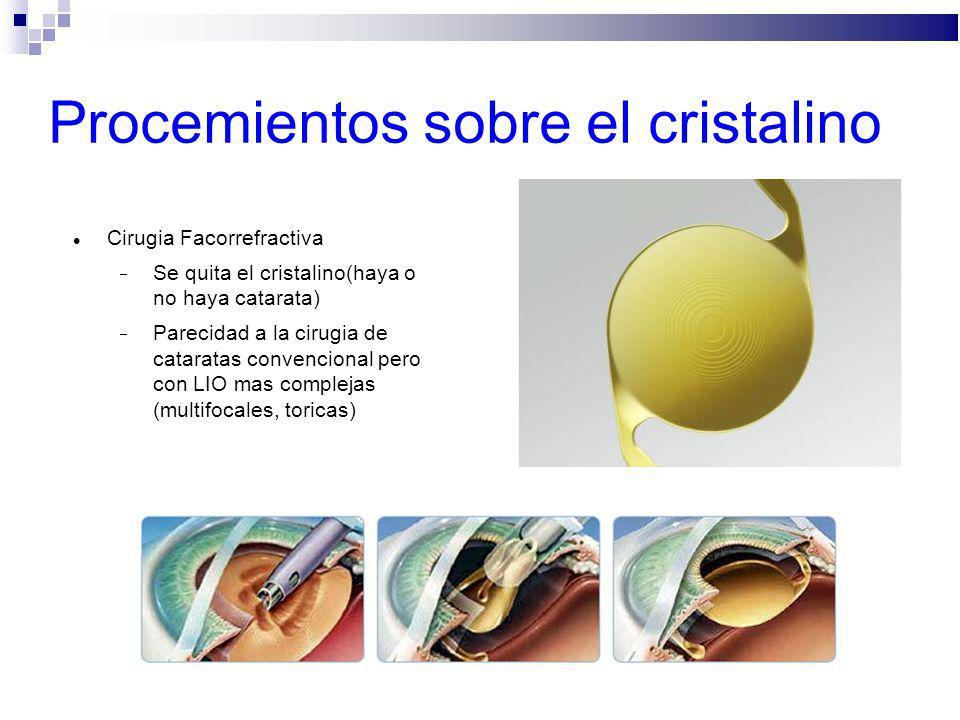 Procemientos sobre el cristalino Cirugia Facorrefractiva Se quita el cristalino(haya o no haya catarata) Parecidad a la cirugia de cataratas convencio