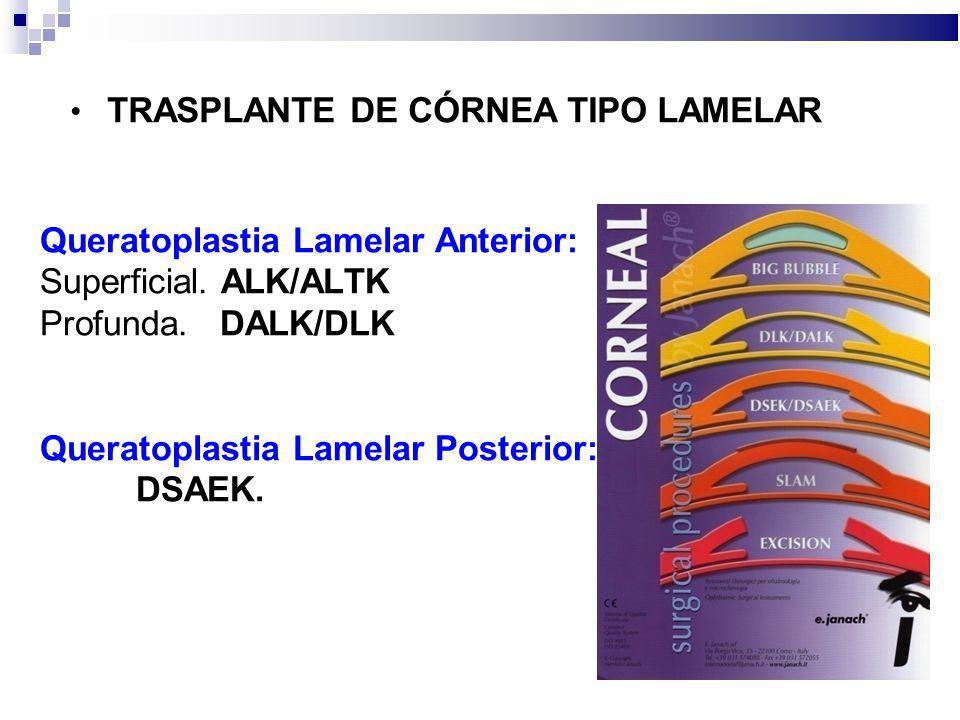 TRASPLANTE DE CÓRNEA TIPO LAMELAR Queratoplastia Lamelar Anterior: Superficial. ALK/ALTK Profunda. DALK/DLK Queratoplastia Lamelar Posterior: DSAEK.