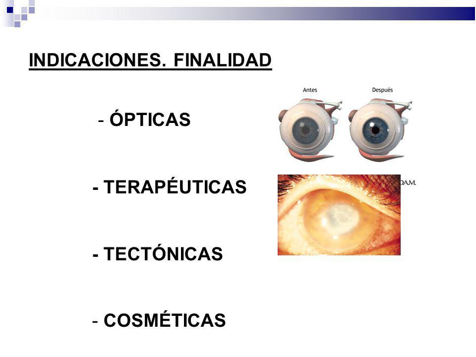 INDICACIONES. FINALIDAD - ÓPTICAS - TERAPÉUTICAS - TECTÓNICAS - COSMÉTICAS