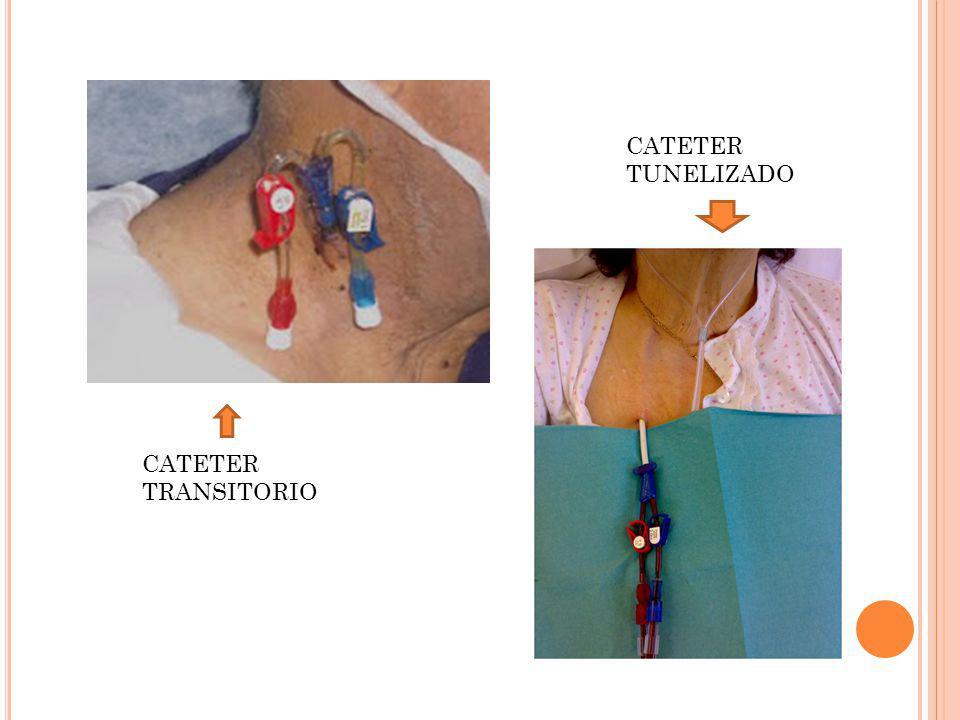 CATETER TRANSITORIO CATETER TUNELIZADO