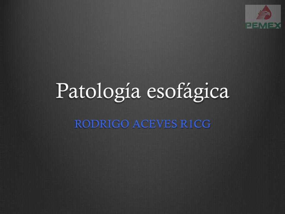 Patología esofágica RODRIGO ACEVES R1CG