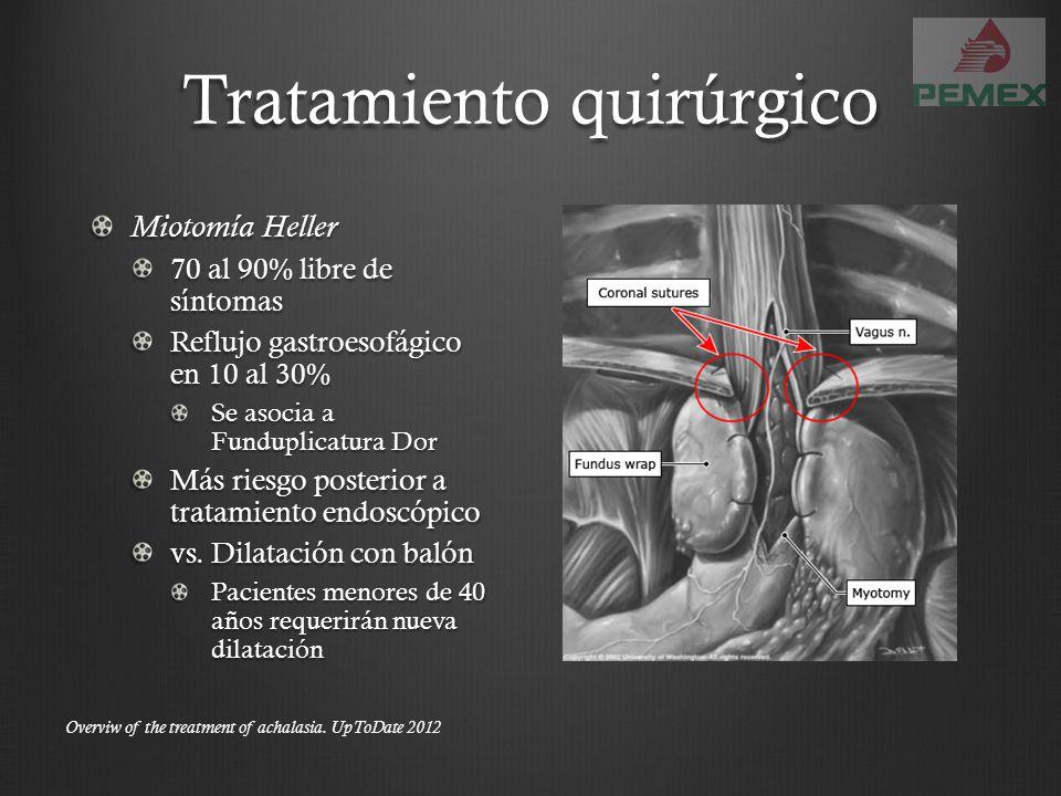 Tratamiento quirúrgico Miotomía Heller 70 al 90% libre de síntomas Reflujo gastroesofágico en 10 al 30% Se asocia a Funduplicatura Dor Más riesgo post