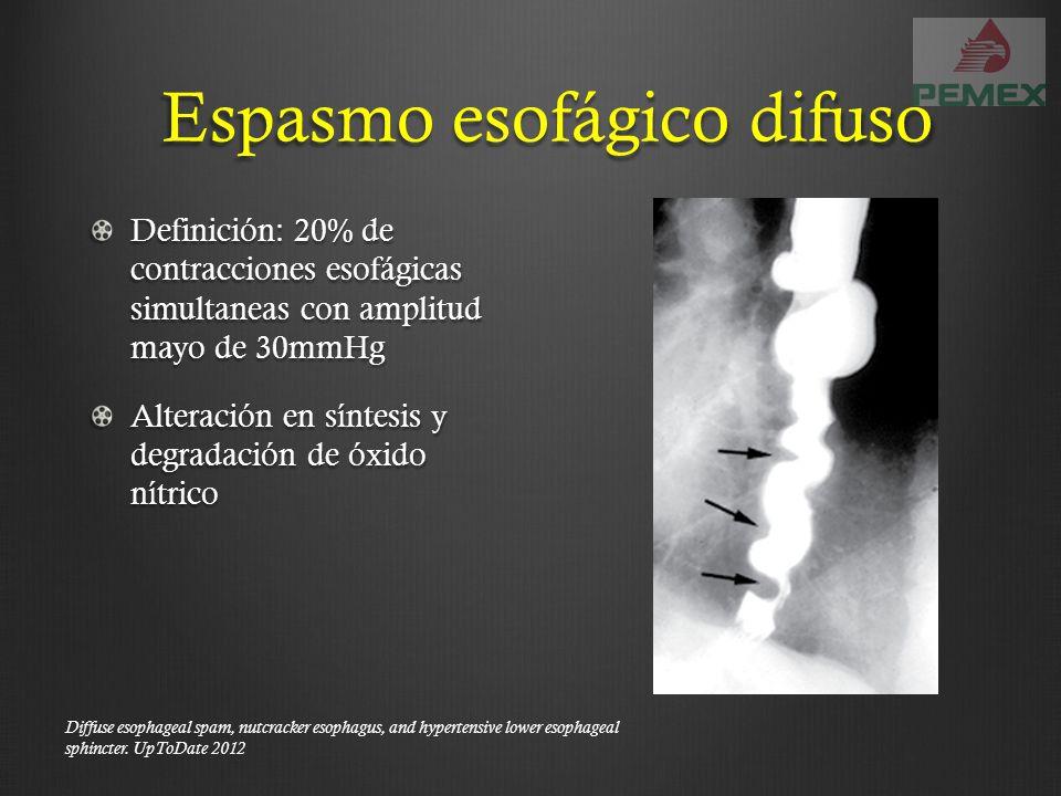Definición: 20% de contracciones esofágicas simultaneas con amplitud mayo de 30mmHg Alteración en síntesis y degradación de óxido nítrico Espasmo esof
