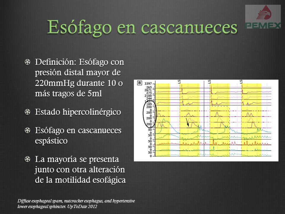 Esófago en cascanueces Definición: Esófago con presión distal mayor de 220mmHg durante 10 o más tragos de 5ml Estado hipercolinérgico Esófago en casca