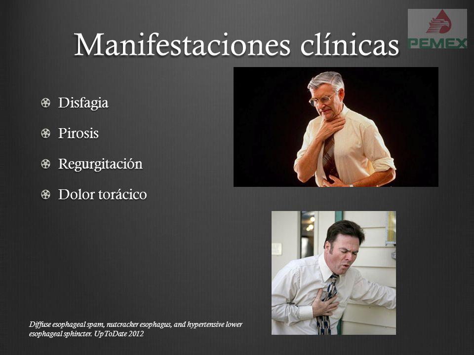 Manifestaciones clínicas DisfagiaPirosisRegurgitación Dolor torácico Diffuse esophageal spam, nutcracker esophagus, and hypertensive lower esophageal