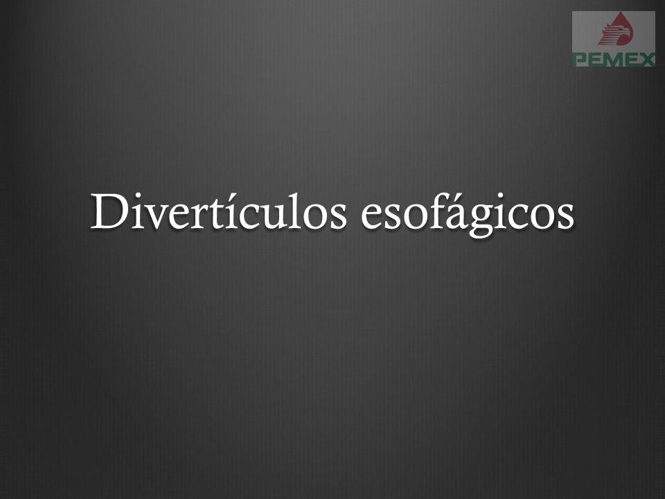 Divertículos esofágicos