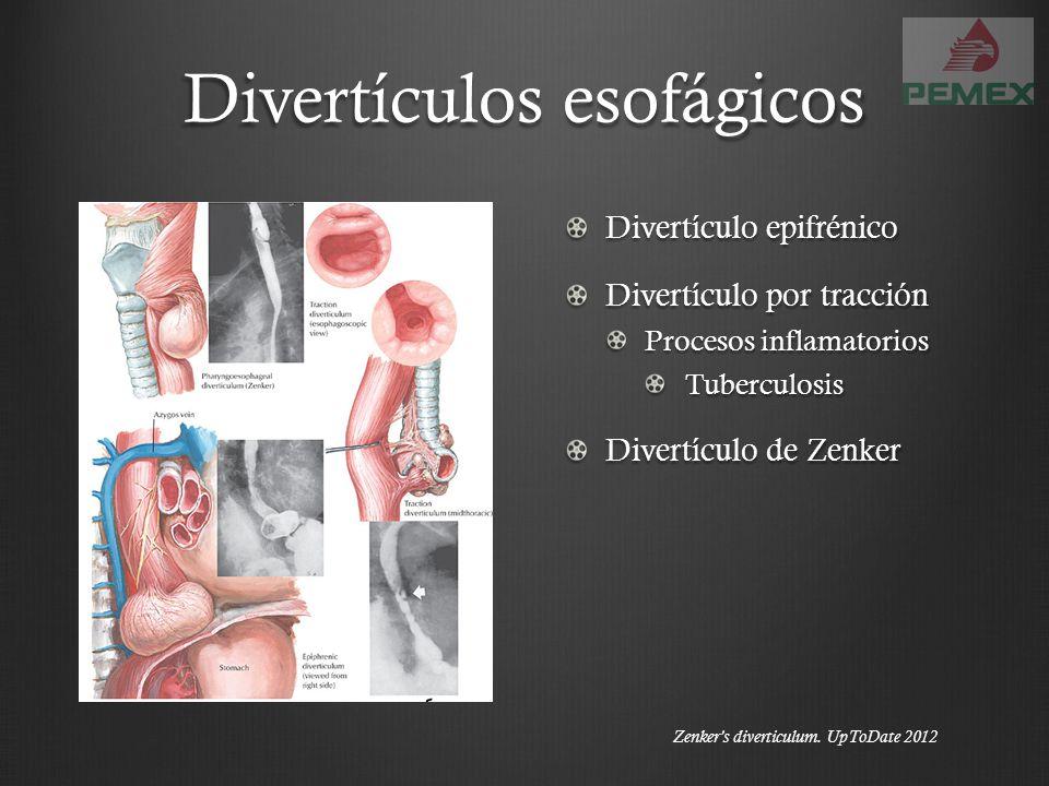 Divertículos esofágicos Divertículo epifrénico Divertículo por tracción Procesos inflamatorios Tuberculosis Divertículo de Zenker Zenkers diverticulum