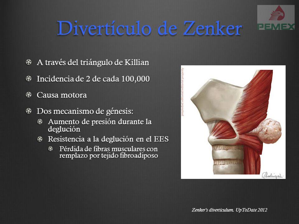 Divertículo de Zenker A través del triángulo de Killian Incidencia de 2 de cada 100,000 Causa motora Dos mecanismo de génesis: Aumento de presión dura