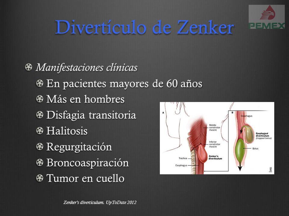 Divertículo de Zenker Manifestaciones clínicas En pacientes mayores de 60 años Más en hombres Disfagia transitoria HalitosisRegurgitaciónBroncoaspirac
