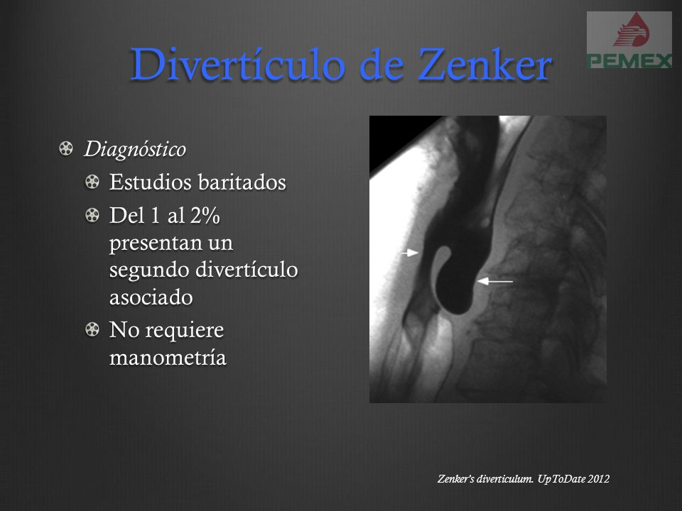 Divertículo de Zenker Diagnóstico Estudios baritados Del 1 al 2% presentan un segundo divertículo asociado No requiere manometría Zenkers diverticulum