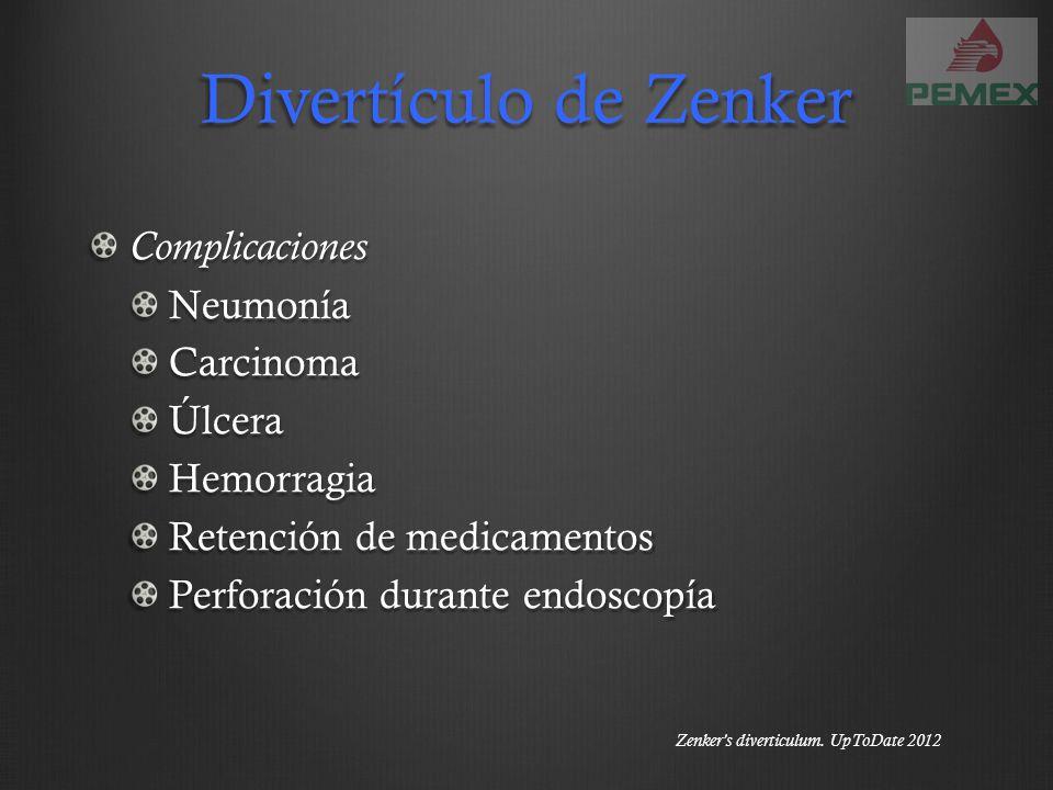 Divertículo de Zenker ComplicacionesNeumoníaCarcinomaÚlceraHemorragia Retención de medicamentos Perforación durante endoscopía Zenkers diverticulum. U