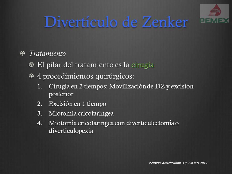 Divertículo de Zenker Tratamiento El pilar del tratamiento es la cirugía 4 procedimientos quirúrgicos: 1.Cirugía en 2 tiempos: Movilización de DZ y ex