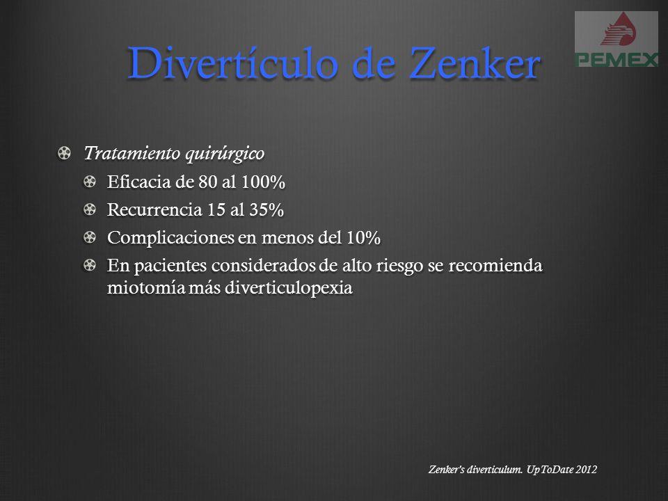 Divertículo de Zenker Tratamiento quirúrgico Eficacia de 80 al 100% Recurrencia 15 al 35% Complicaciones en menos del 10% En pacientes considerados de