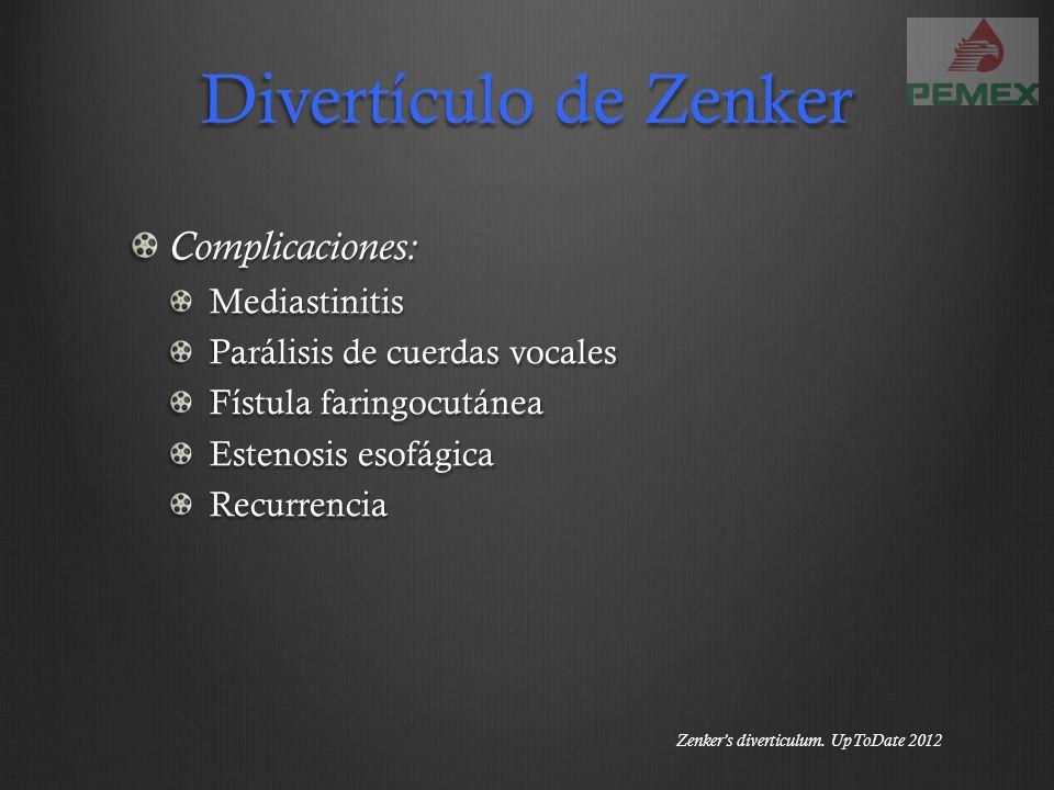 Divertículo de Zenker Complicaciones:Mediastinitis Parálisis de cuerdas vocales Fístula faringocutánea Estenosis esofágica Recurrencia Zenkers diverti