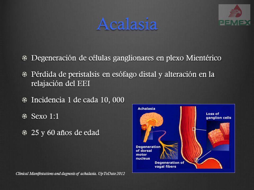 Esofagitis eosinofílica Edad 20 y 30 años Sexo masculino Síntomas inician 4 años previos a diagnóstico 15% de disfagia la presentan por endoscopía Pathogenesis, clinical manifestations, and diagnosis of eosinophilic esophagitis.