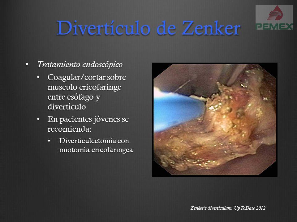 Divertículo de Zenker Tratamiento endoscópico Tratamiento endoscópico Coagular/cortar sobre musculo cricofaringe entre esófago y divertículo Coagular/