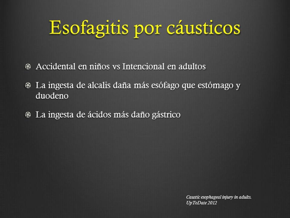 Esofagitis por cáusticos Accidental en niños vs Intencional en adultos La ingesta de alcalis daña más esófago que estómago y duodeno La ingesta de áci