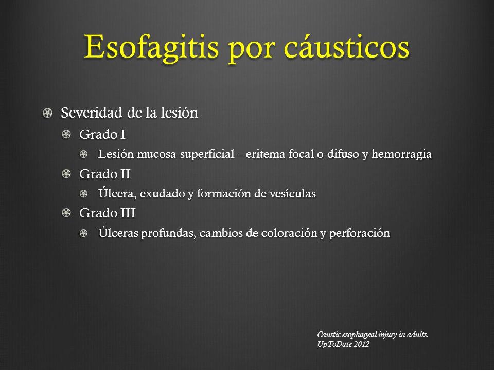 Esofagitis por cáusticos Severidad de la lesión Grado I Lesión mucosa superficial – eritema focal o difuso y hemorragia Grado II Úlcera, exudado y for