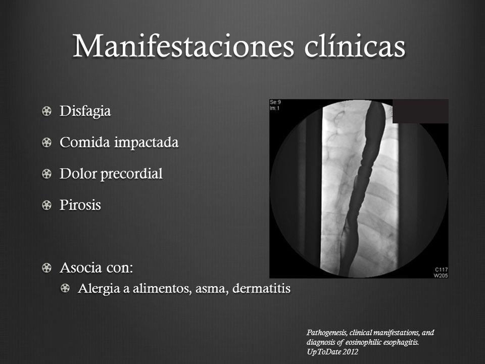 Manifestaciones clínicas Disfagia Comida impactada Dolor precordial Pirosis Asocia con: Alergia a alimentos, asma, dermatitis Pathogenesis, clinical m