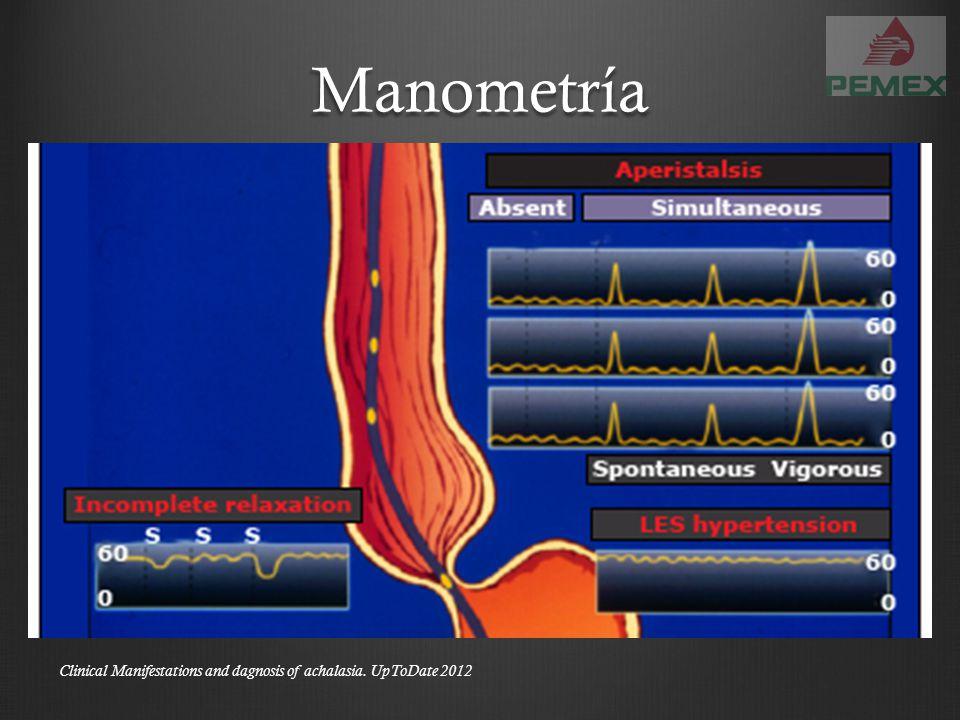 Trago de bario Clinical Manifestations and dagnosis of achalasia. UpToDate 2012