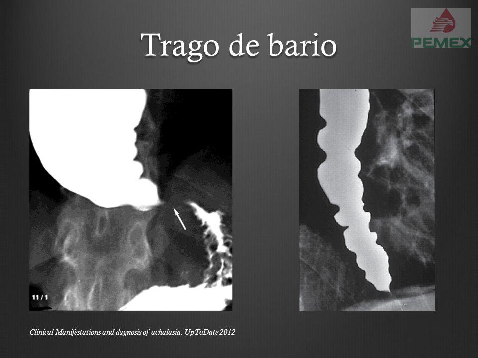 Esofagitis por HSV DiagnósticoEndoscopía Trago de Bario Úlceras menores de 2cm Volcano-likeBiopsia Células de Cowdry tipo A Herpes simplex virus type 1 infections of the esophagus.
