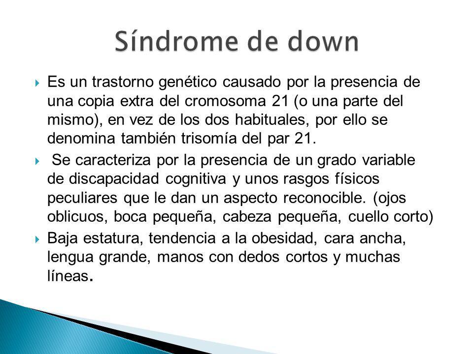 Es un trastorno genético causado por la presencia de una copia extra del cromosoma 21 (o una parte del mismo), en vez de los dos habituales, por ello se denomina también trisomía del par 21.