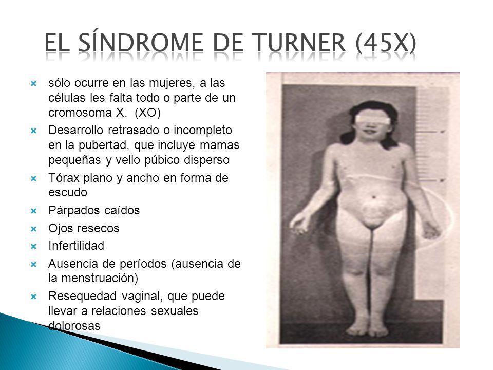sólo ocurre en las mujeres, a las células les falta todo o parte de un cromosoma X. (XO) Desarrollo retrasado o incompleto en la pubertad, que incluye