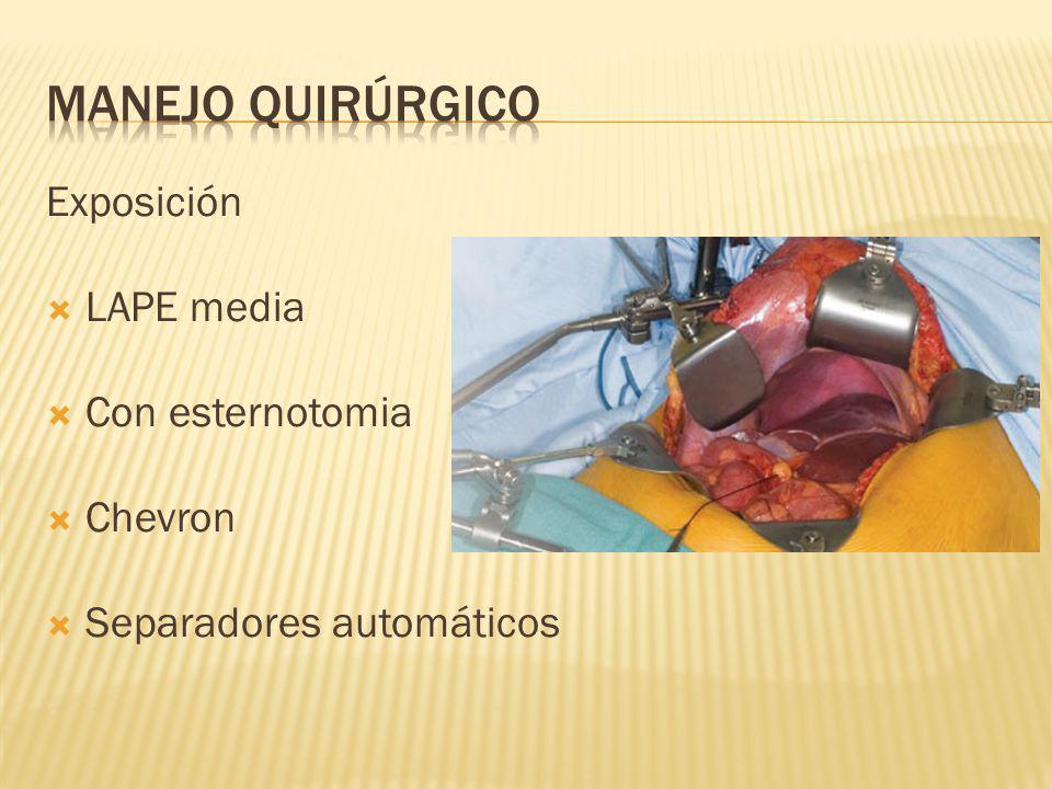 Exposición LAPE media Con esternotomia Chevron Separadores automáticos