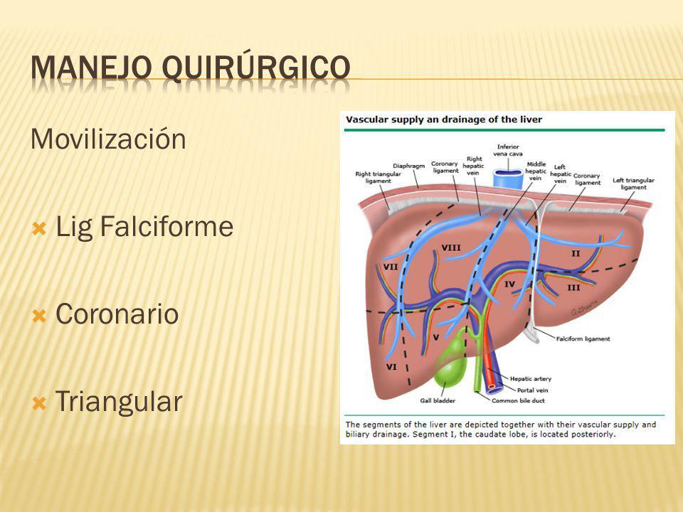 Movilización Lig Falciforme Coronario Triangular