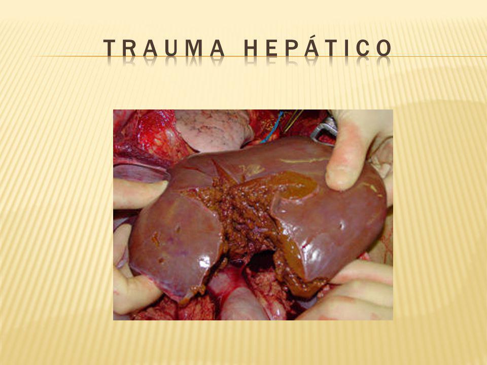 OBJETIVO Control de hemorragia Control de daños