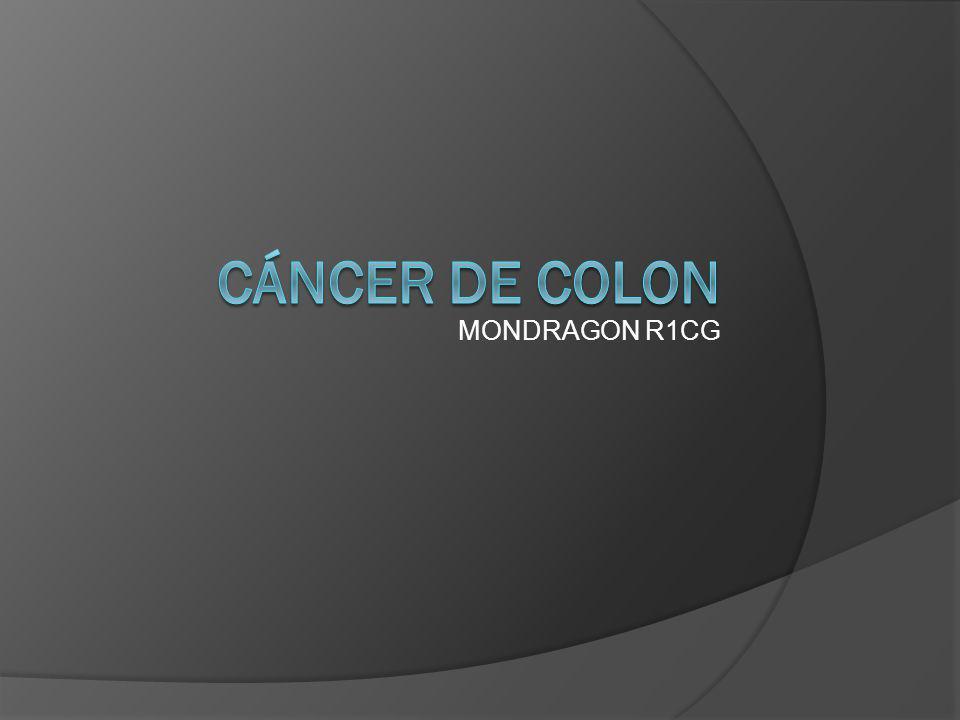 MONDRAGON R1CG