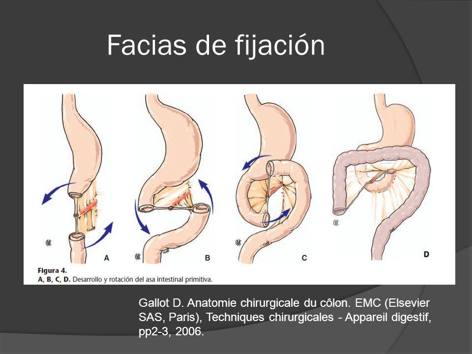 Colonoscopia Revisión patología Labs + CEA TAC torac-abd PET – ct Resecable No obstructivo COLECTOMIA + LINFADENECTOMIA REGIONAL RESECABLE OBSTRUCTIVO COLECTOMIA + LINFADENECTOMIA REGIONAL STENT COLECTOMIA + LINFADENETOMIA REGIONAL NO RESECABLE TX PALIATIVO – Quimio CA COLON NO METASTASICO NCCN clinical practice guidelines in oncology, Colon cancer, V2 2011