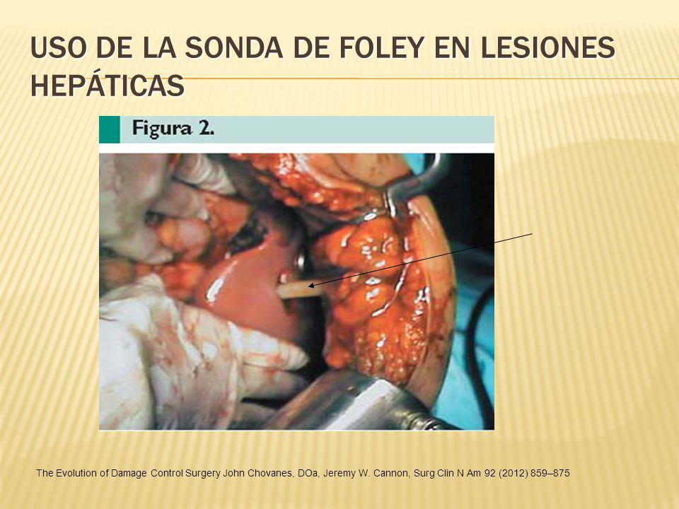 USO DE LA SONDA DE FOLEY EN LESIONES HEPÁTICAS The Evolution of Damage Control Surgery John Chovanes, DOa, Jeremy W. Cannon, Surg Clin N Am 92 (2012)