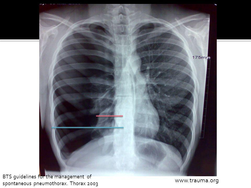 www.trauma.org BTS guidelines for the management of spontaneous pneumothorax. Thorax 2003