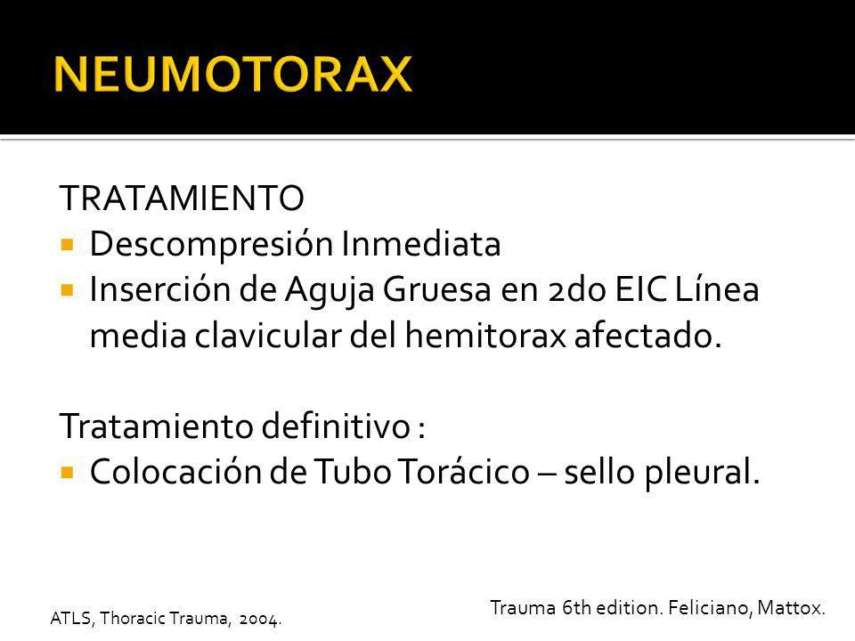 TORACOCENTESIS PARA NEUMOTORAX A TENSION 1.-ABC 2.-Oxigeno y Ventilación de acuerdo a necesidades.
