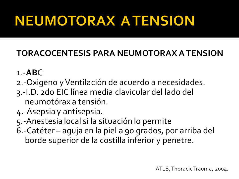 TORACOCENTESIS PARA NEUMOTORAX A TENSION 7.- Puncione la pleura parietal 8.- Destape el catéter y escuche salida de aire.
