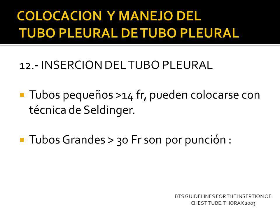 12.- INSERCION DEL TUBO PLEURAL Tubos pequeños >14 fr, pueden colocarse con técnica de Seldinger. Tubos Grandes > 30 Fr son por punción : BTS GUIDELIN