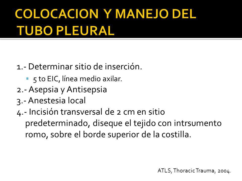5.- Con una pinza puncione la pleura visceral 6.- Coloque una pinza en la parte proximal del tubo pleural avanzándolo y dirigiéndolo hacia la parte de atrás.