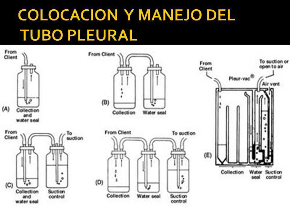 18.- RETIRO DEL TUBO Inspiración o Espiración Forzada Movimiento rápido y continuo.