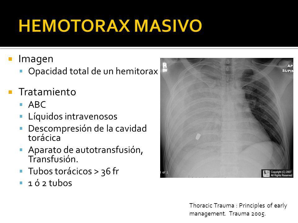 1500 ml de salida a la colocación del tubo Indicación para toracotomía 200 ml por hora durante 3 horas Indicaciones par toracotomía QX Cardio-toracico Toracacotmomia no se debe de practicar a menos que se encuentre un cirujano calificado para ello.