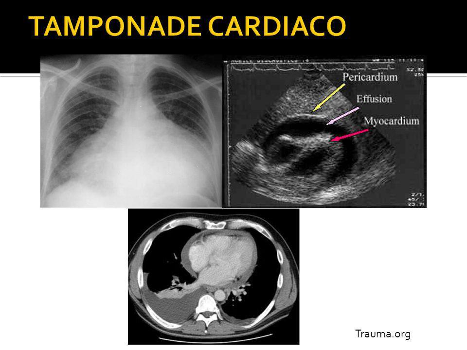 Px hemodinamicamente inestable, con trauma cerrado de tórax sin causa aparente.