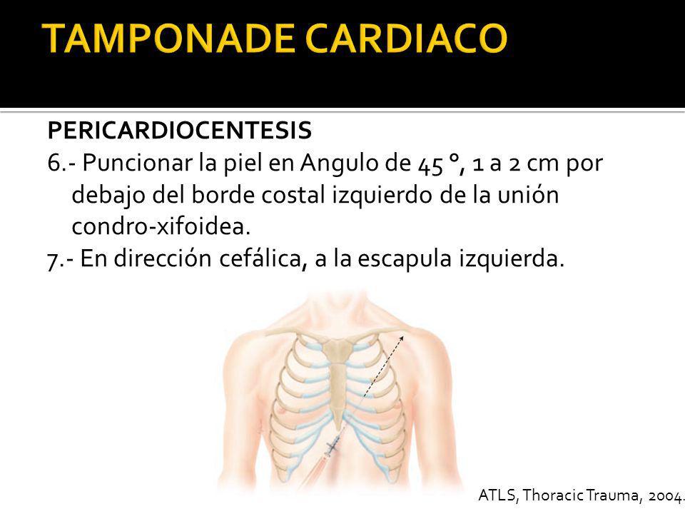 PERICARDIOCENTESIS 8.- Avance con cuidado 9.- Corriente de lesión (cambios en ST, Extrasístole, Ensancha- amiento del QRS) - Retirar un poco.
