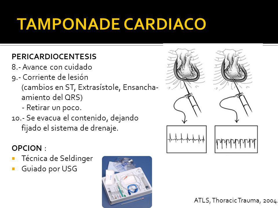 COMPLICACIONES DE LA PERICARDIOCENTESIS Aspiración de sangre Ventricular Laceración epi o miocardio Laceración coronaria Nuevo Hemopericardio FV Neumotórax Lesión Esófago Lesión Peritoneo ATLS, Thoracic Trauma, 2004.
