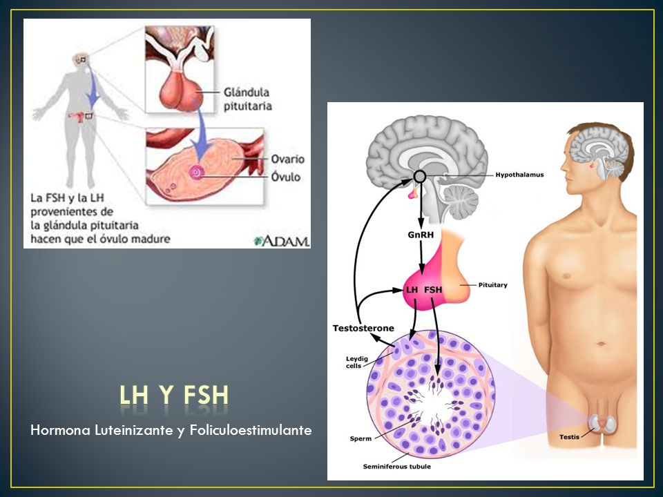 Hormona Luteinizante y Foliculoestimulante