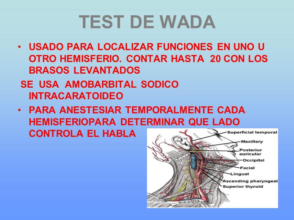 TEST DE WADA USADO PARA LOCALIZAR FUNCIONES EN UNO U OTRO HEMISFERIO. CONTAR HASTA 20 CON LOS BRASOS LEVANTADOS SE USA AMOBARBITAL SODICO INTRACARATOI