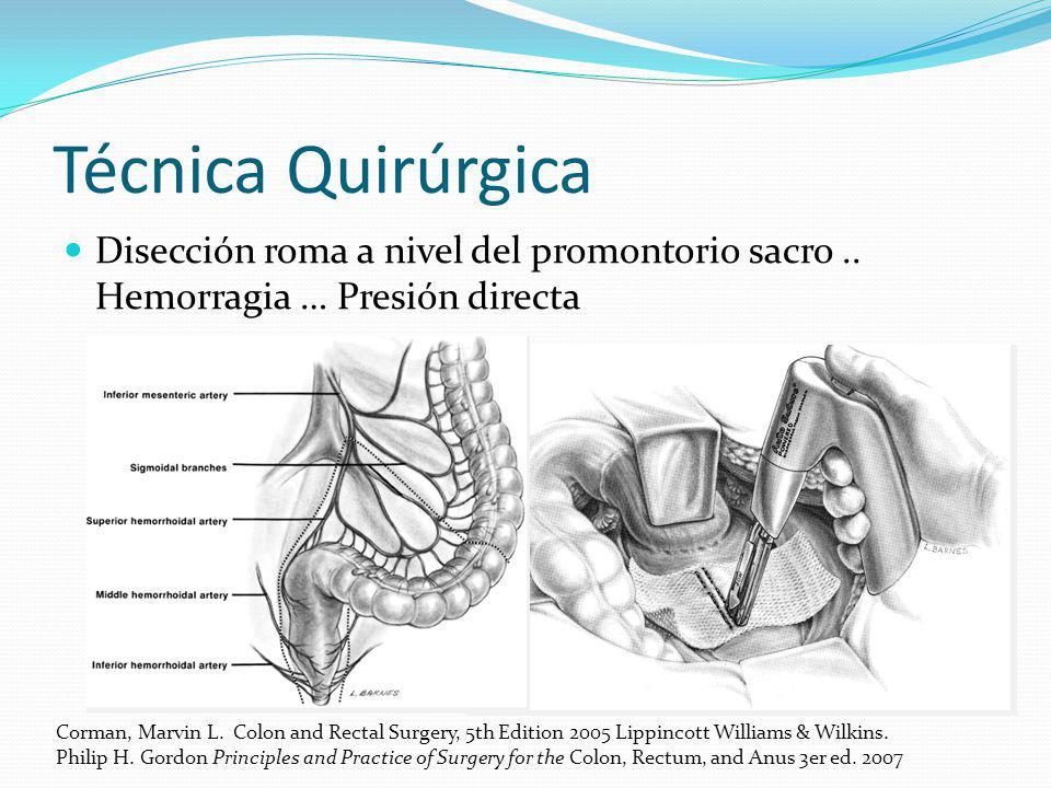 Técnica Quirúrgica Disección roma a nivel del promontorio sacro.. Hemorragia … Presión directa Corman, Marvin L. Colon and Rectal Surgery, 5th Edition