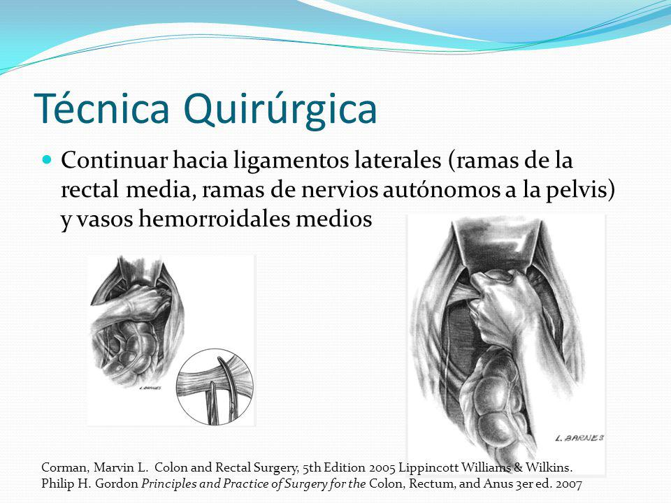 Técnica Quirúrgica Continuar hacia ligamentos laterales (ramas de la rectal media, ramas de nervios autónomos a la pelvis) y vasos hemorroidales medio