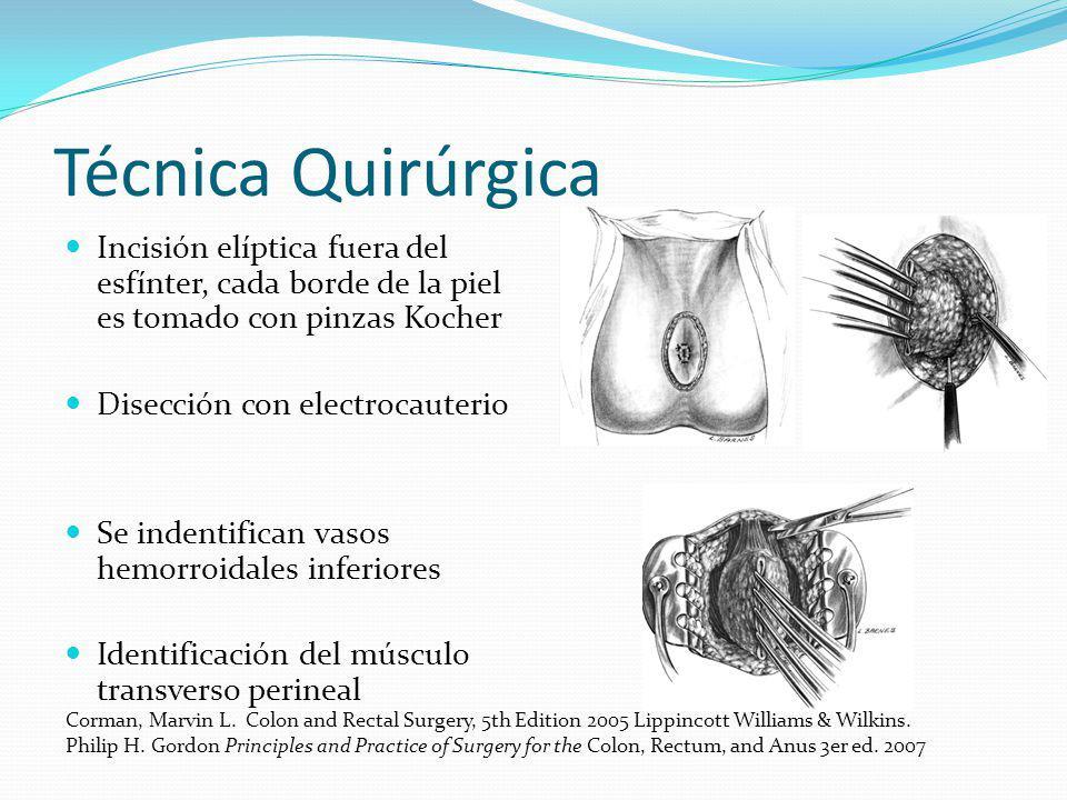 Técnica Quirúrgica Incisión elíptica fuera del esfínter, cada borde de la piel es tomado con pinzas Kocher Disección con electrocauterio Se indentific